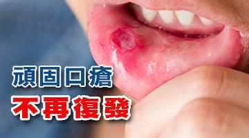 林淦生®口瘡靈迅速提高人體對口瘡病原體的抵抗力及對潰瘍的癒合力,幫助頑固口瘡迅速康復而不再復發。100%原生態中藥十倍濃縮提煉,無任何副作用,適合任何體質及慢性病患者服用。所需療程:普通口瘡3-7天痊癒,頑固性口瘡30-60天可獲根治。